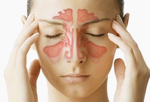 Виды аллергического ринита