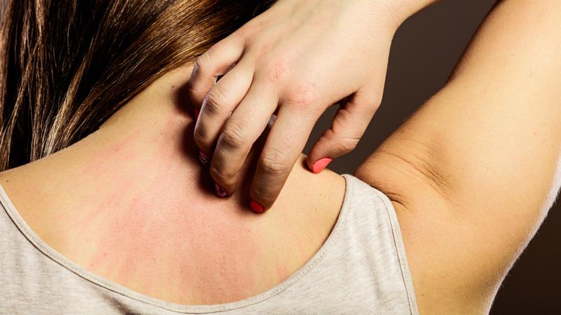 Раздражение кожи ка симптом аллергии